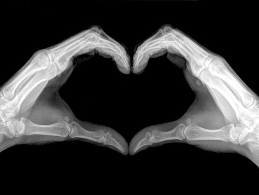 Heart sign shows by x-ray.