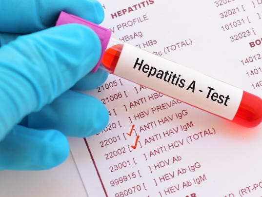 Hepatitis A virus (HAV) test
