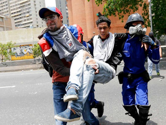 "A protester is carried after being injured in clashes with security forces during anti-government protests in Caracas, Venezuela, Wednesday, April 19, 2017. Tens of thousands of opponents of President Nicolas Maduro flooded the streets of Caracas in what's been dubbed the ""mother of all marches"" against the embattled president."