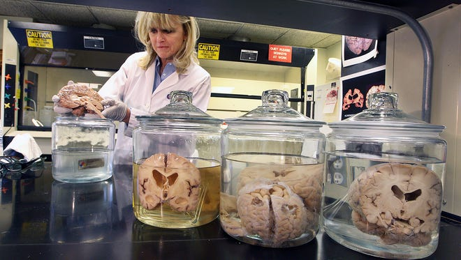 In this Dec. 14, 2011 photo, Appleton native Ann McKee inspects a brain in the Veterans Affairs Medical Center in Bedford, Mass.
