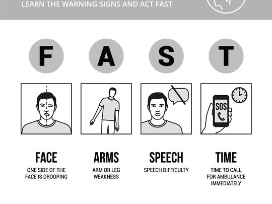 Know the signs of a stroke and act FAST.