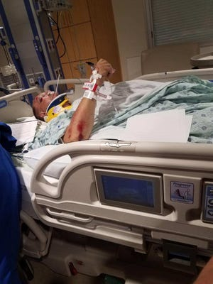 Ron Duncan, 50, of Pickens County, is recovering at Greenville Memorial Hospital after he was involved in a hit-and-run in Pickens on July 4.