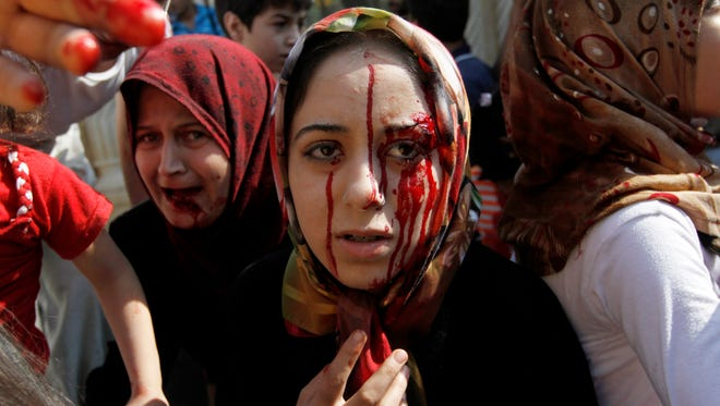Injured Syrian women arrive at a field hospital after an airstrike hit their homes on the outskirts of Aleppo in 2012.