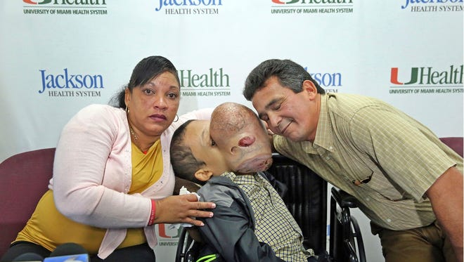 Emanuel Zayas, 14, will have surgery at Holtz Children's Hospital at Jackson Memorial in Miami, this holiday season to remove a 10-pound tumor that covers his face.