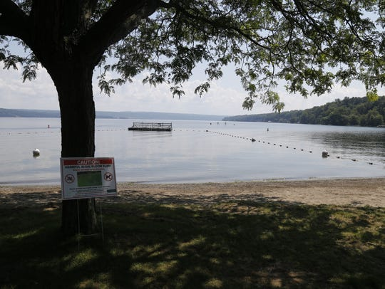 Signs cautioning visitors about blue-green algae blooms