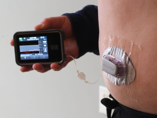 Brayden Merton, 10, uses a Continuous Glucose Monitoring (CGM) system that tracks his blood glucose levels and sends the information to an insulin infusion pump. The combination closely maintains Bayden's blood sugar levels within a healthy range.