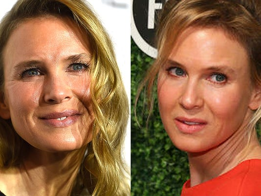 635495794969674976-Renee-Zellweger-faceoff
