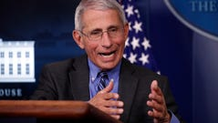Dr. Anthony Fauci, director of the National Institute of Allergy and Infectious Diseases, speaks about the coronavirus in the James Brady Press Briefing Room of the White House, Monday, April 6, 2020, in Washington. (AP Photo/Alex Brandon)
