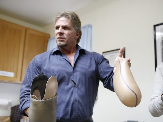 Jeff Fredrick, MS CPO, details the importance of socket size for the knee joint on a prosthetic leg.
