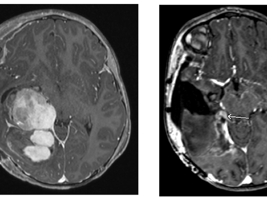 Scans show before and after Christian Daugherty's tumor was removed.