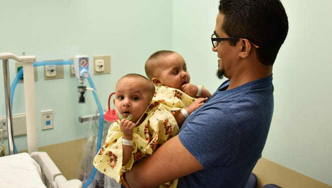 In this 2016 photoMarino Abel Camacho holds his conjoined daughters, Ballenie and Bellanie Camacho, before surgery at Maria Fareri Children's Hospital in Valhalla, N.Y.