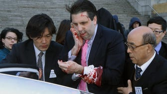 Injured U.S. Ambassador to South Korea Mark Lippert gets into a car to leave for a hospital in Seoul on Thursday after he was attacked by a man wielding a razor. His injuries were not life-threatening.