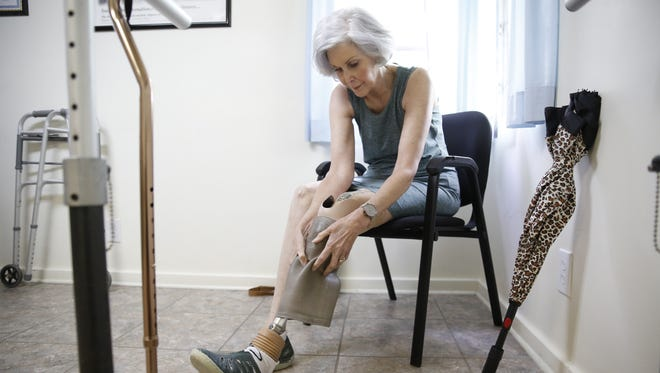 Theresa Neubauer fits on her new Ottobock Meridium prosthetic leg at the Rehab Engineering, LLC office. She is the 12th person in the country to receive this new technology.