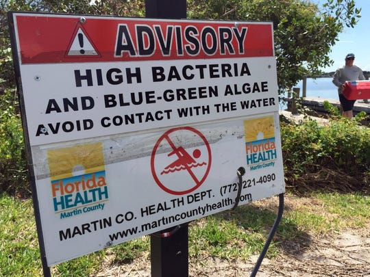 Signs warning of high bacteria levels and algae blooms line the boat ramp and fishing pier May 31, 2016 at Leighton Park in Palm City. Algae blooms are spreading into the main channel of the St. Lucie River, past downtown Stuart to the northern end of Sewall's Point.