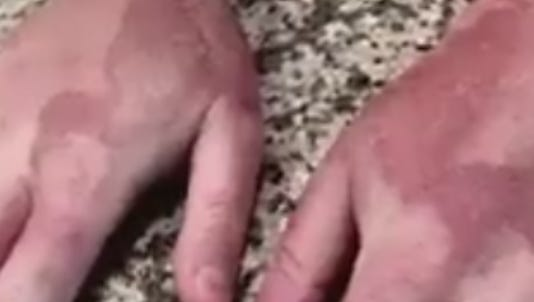 Aaron Peers shows his burns after an encounter with lime juice and the sun.