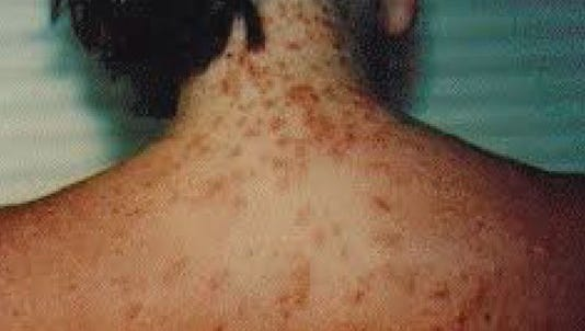 Sea lice are popping up all over Gulf Coast beaches. While many sightings are along the panhandle, biologists say they expect to start seeing more move south along the coastline.