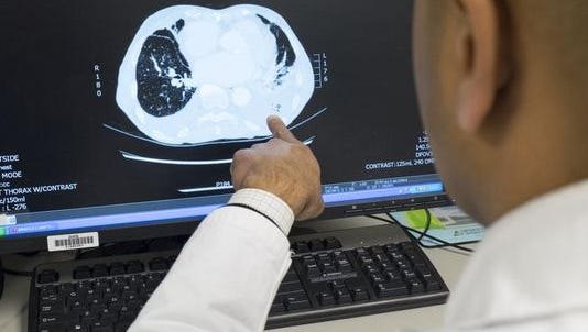 A CT scan of a patient with lung cancer