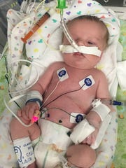 Braedan Dewey spent the first year of his life with a feeding tube down his throat.