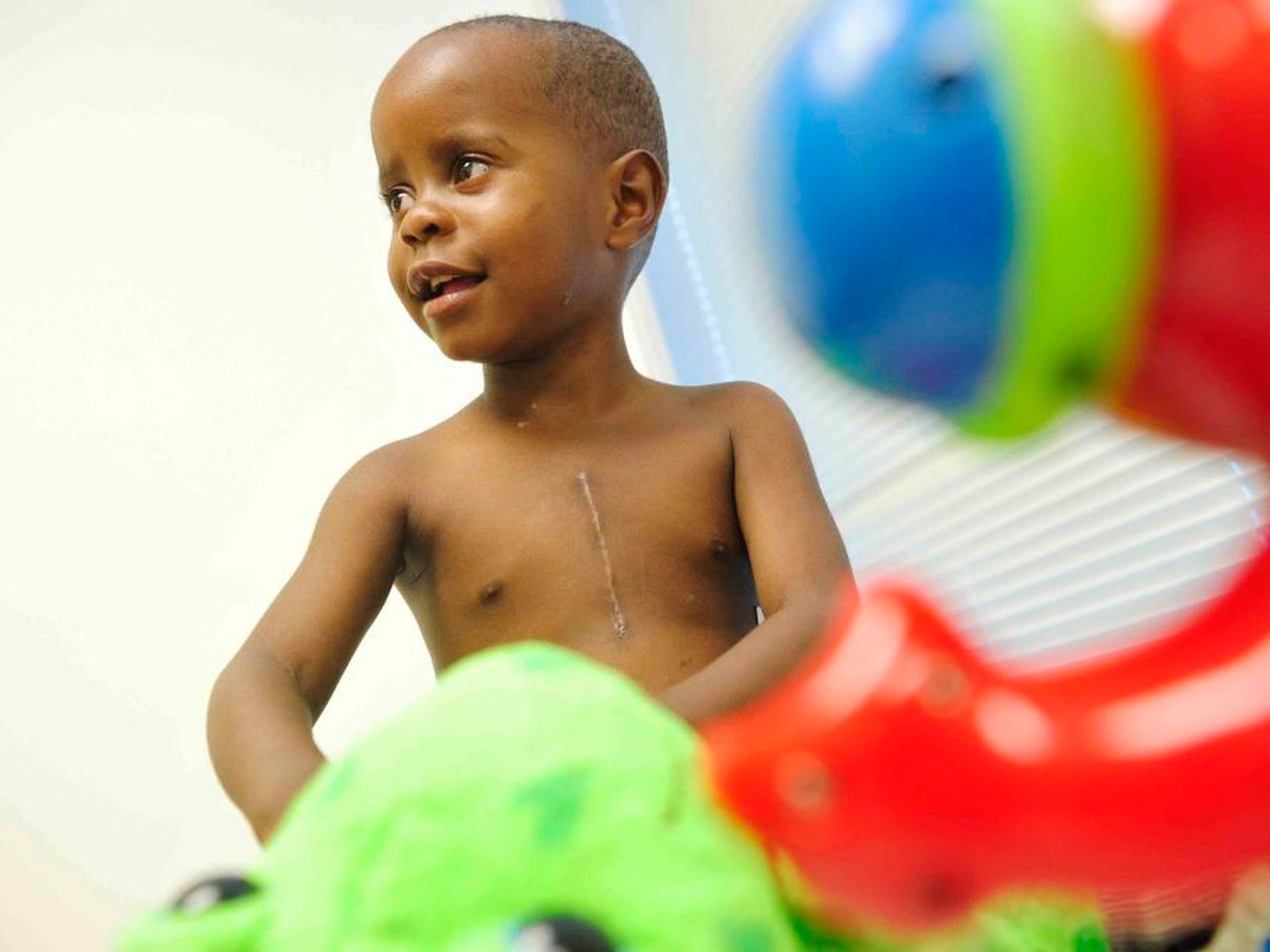 3-year-old Ian Muhereza, from Uganda, plays with a toy during a final post-op appointment after heart surgery as a newborn at Monroe Carell Jr. Children's Hospital at Vanderbilt in Nashville, Tenn. on May 30, 2014.