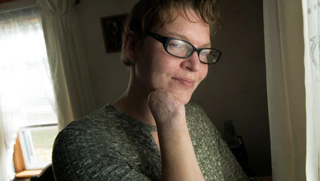 Natasha Dillow contracted a flesh eating bacteria during a visit to a lake. The Chambersburg woman is now adapting to life after most of her fingers and toes were amputated and skin graft surgery was used on her legs.