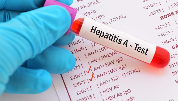 An outbreak of hepatitis A has infected at least 120