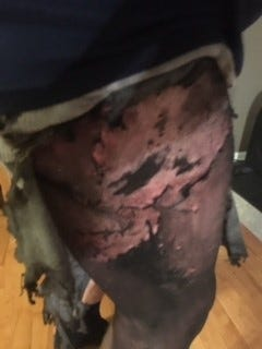 An undated photo provided by George Ayers' attorney shows second-degree burns to Ayers' leg that he says were caused by an electronic cigarette battery exploding in his pocket. He filed a lawsuit over the incident in Delaware Superior Court on Wednesday.