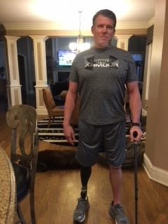 Tim Hopkins of Mason, in a provided photograph, models his prosthetic right leg, which he got after an infection forced doctors to amputate his right leg in October 2016.