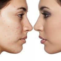 Hammerling: Handle acne before new school year begins