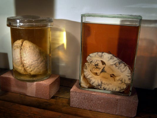 Human brains at the Indiana Medical History Museum