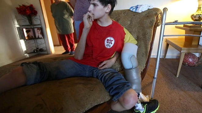 Jaxon Ronsonet watches a television show in Biloxi after taking off his prosthetic leg. Ronsonet lost his left leg due to a pit bull attack.