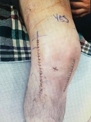 The scars of surgery on the knee of Jesse Kruse reveal