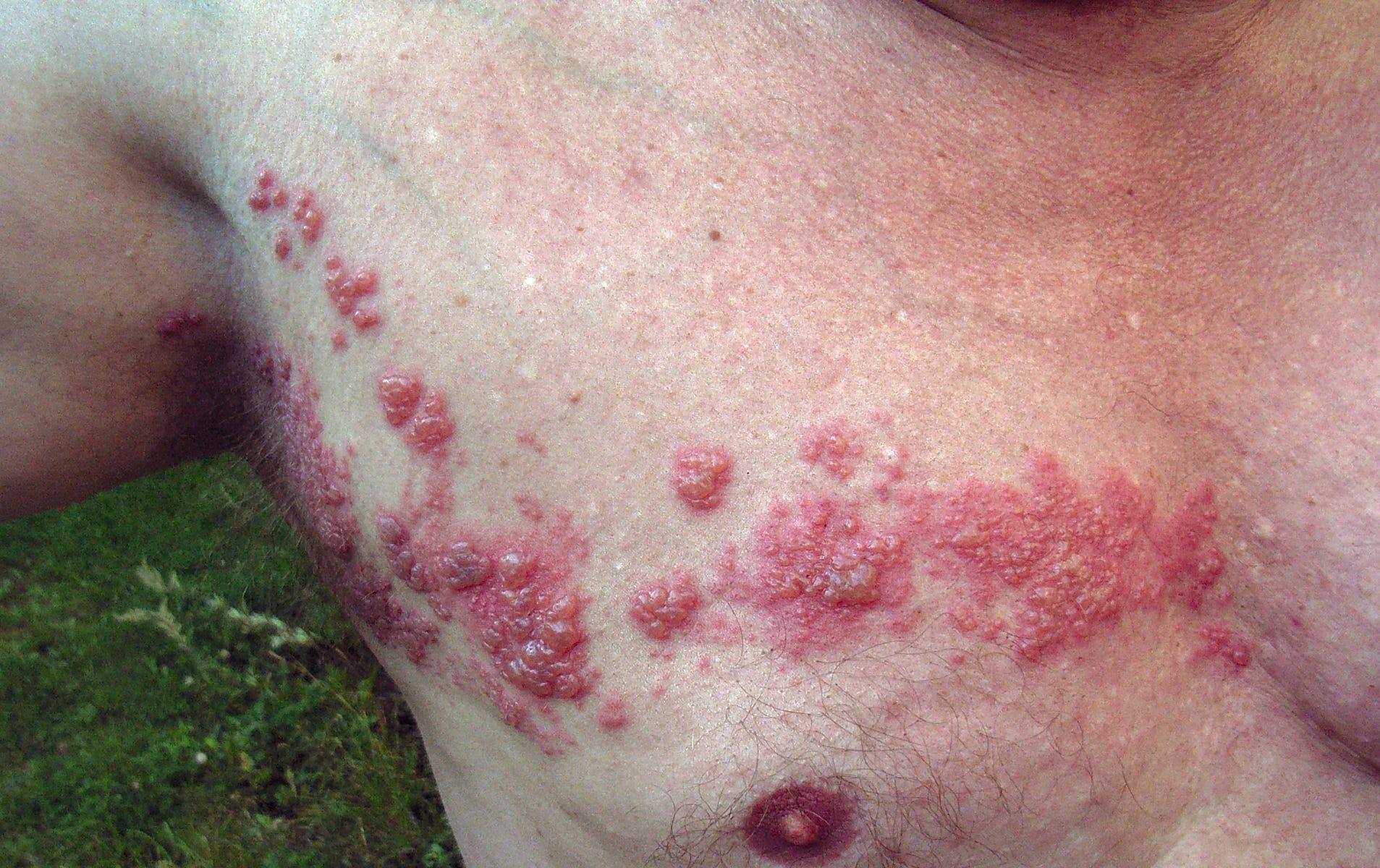 Herpes zoster sexual disease