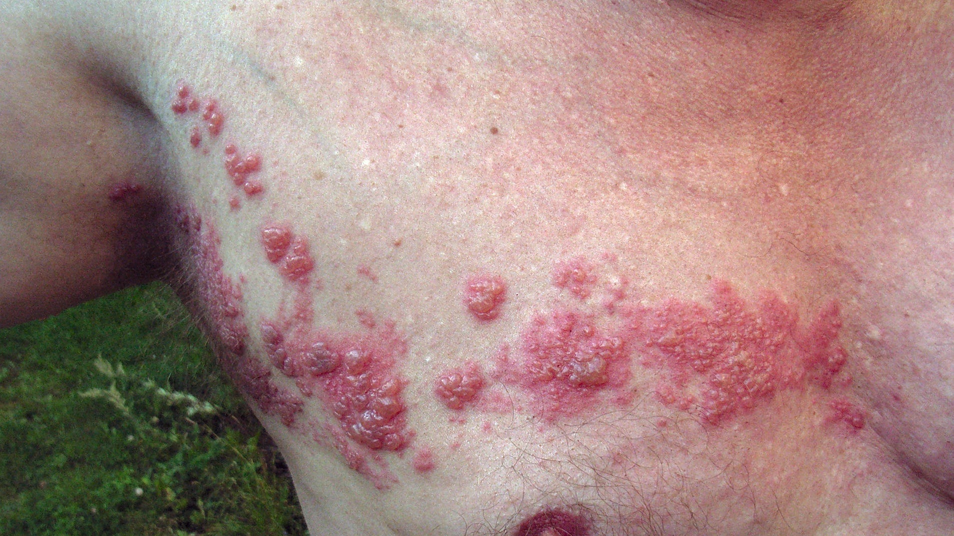 Herpes May Lay Dormant For Years