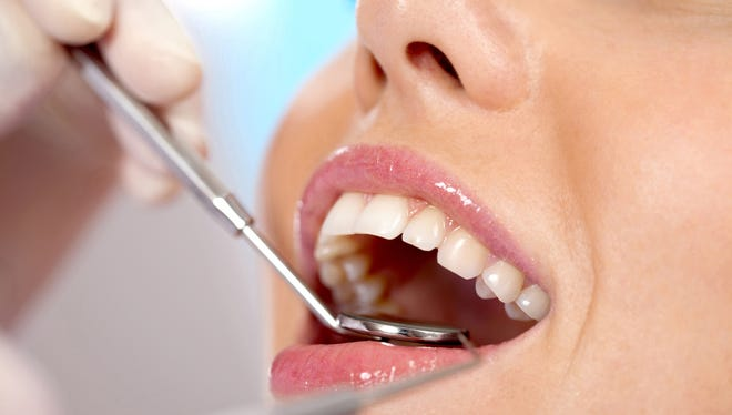 Veneers can correct stained, chipped or crooked teeth, among other conditions.