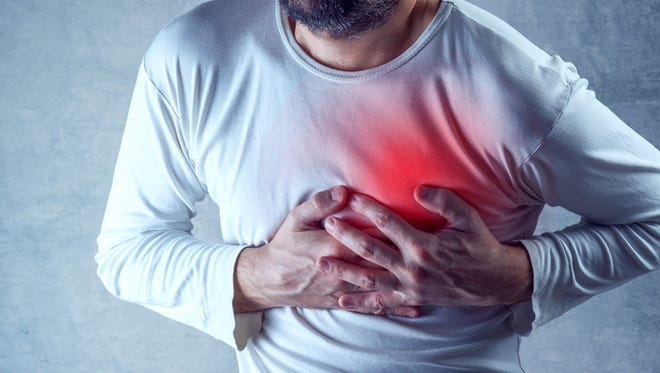 Heartburn often occurs while at rest while a heart attack can occur in the middle of exertion.
