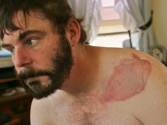 Ed Brittingham had flesh-eating bacteria attacking his body when prison doctors told him he had a broken arm.