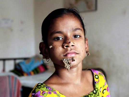 rare skin rashes - pictures, photos