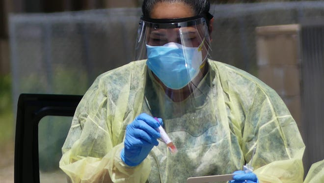 San Bernardino County reported 281 new coronavirus cases Tuesday, June 16, 2020, a 3.7% increase from the day before, bringing its total number of cases to 7,796.