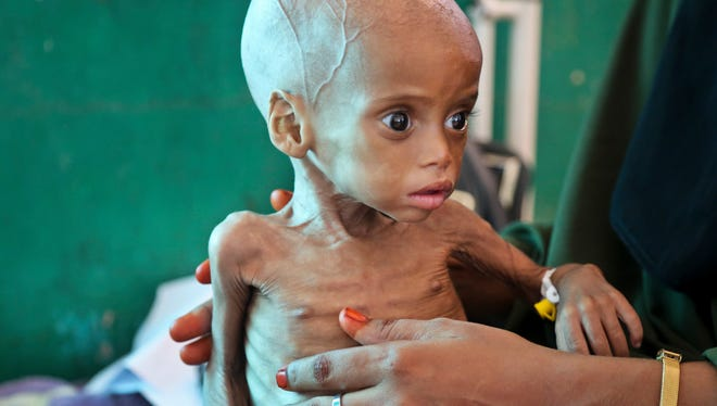 In this March 2017, file photo, acutely malnourished child Sacdiyo Mohamed, 9 months old, is treated at the Banadir Hospital after her mother Halima Hassan Mohamed fled the drought in southern Somalia and traveled by car to the capital Mogadishu, in Somalia.
