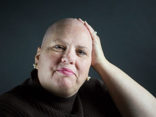 Kimberly Leffew boldly removed her wig during an interview with The Star. Leffew is currently being treated for stage 2 breast cancer.