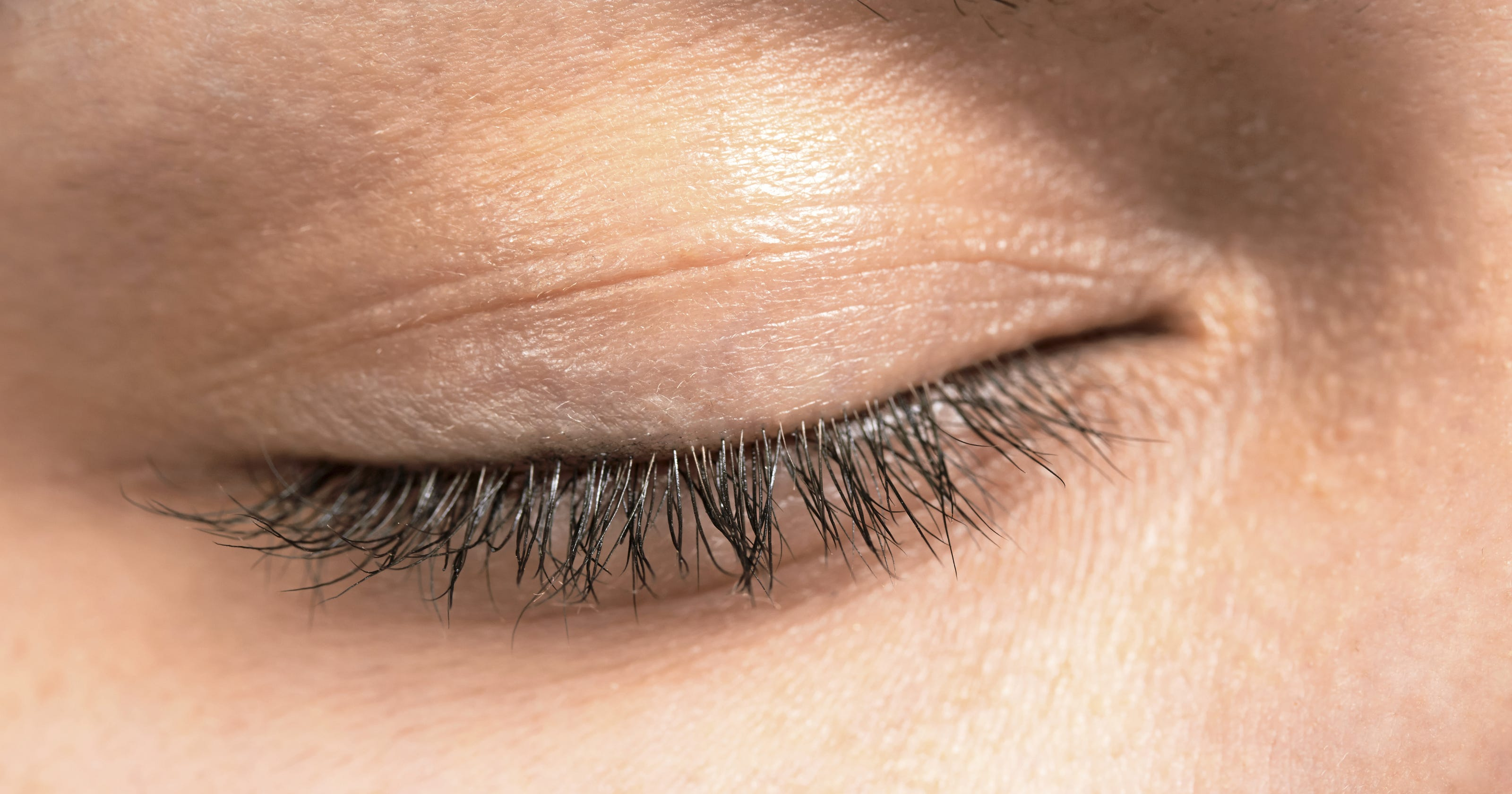 Sagging Eyelids More Common With Certain Traits