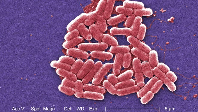 A microscope photo of an E.. coli bacteria.