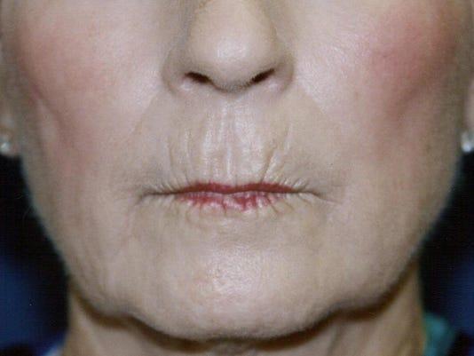 Direct Lip Lift - BEFORE