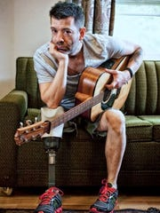 Travis Meadows says he rarely takes off his prosthetic