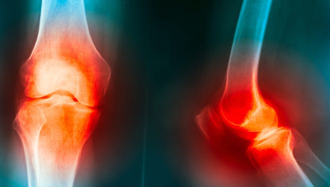 Cooper University Health Care is recruiting patients for a study to see if a patient's own fat cells can relieve osteoarthritis pain in the knee.