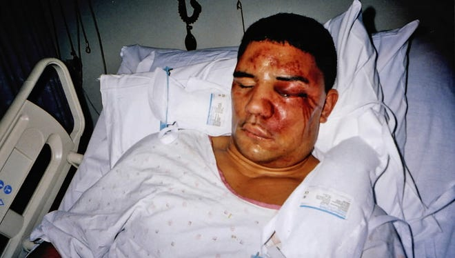 Frank Jude Jr. was beaten by police in October 2004.