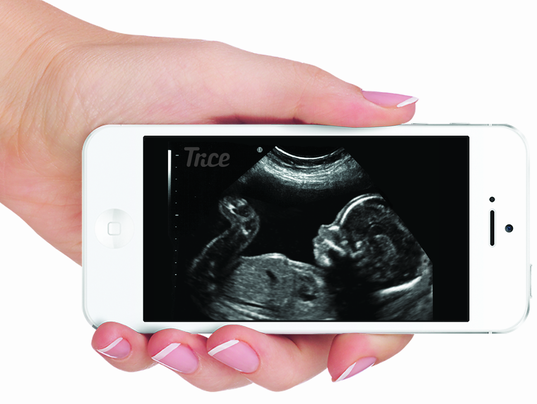 636631344303902482-Tricefy-Tablet.png