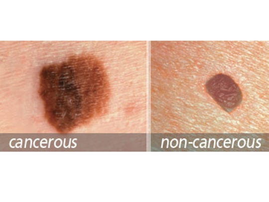 D: Diameter - Melanomas usually are larger in diameter than the size of the eraser on your pencil (1/4 inch or 6 mm), but they may sometimes be smaller when first detected.
