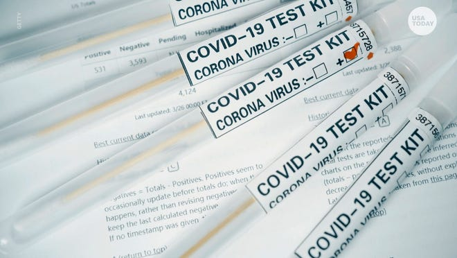 Widespread testing can identify people who have the virus and halt the spread of some new cases. But because no test is infallible, some cases will be missed, and some people will be forced to miss work after false positives.