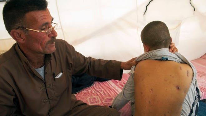 Abdelwahab Akray lifts his 9-year-old son's shirt to show shrapnel scars from airstrikes on his back. His children take turns picking shrapnel out of the scars, where the skin has healed over.